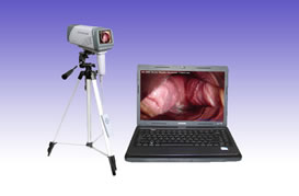 RS0280 Digital Electronic Video Colposcope SM-DMC